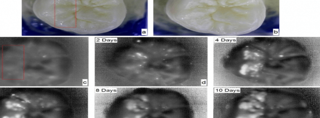Imaging Technology Spots Caries