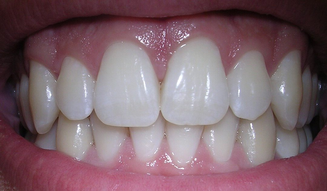 Receding Gums: Treatment Options and Causes