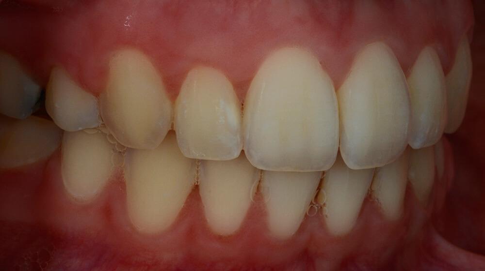 Cross-polarized reflective light dental