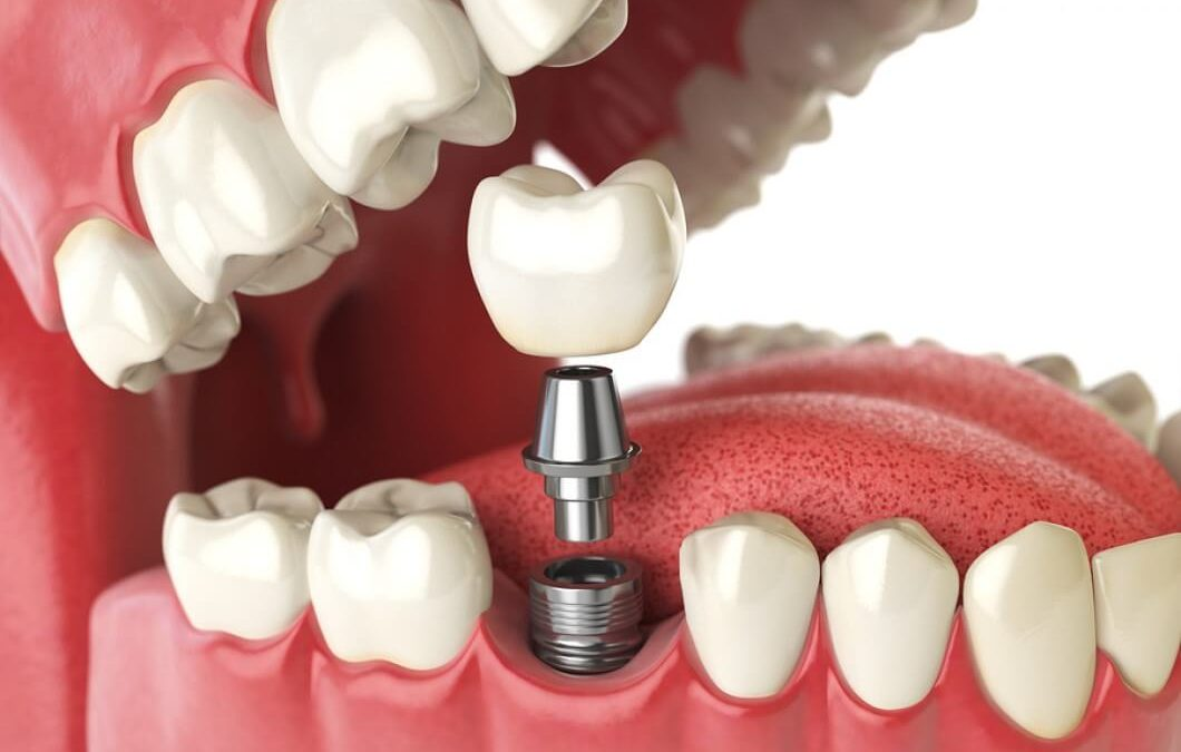 Why we need a global initiative for clean dental implants