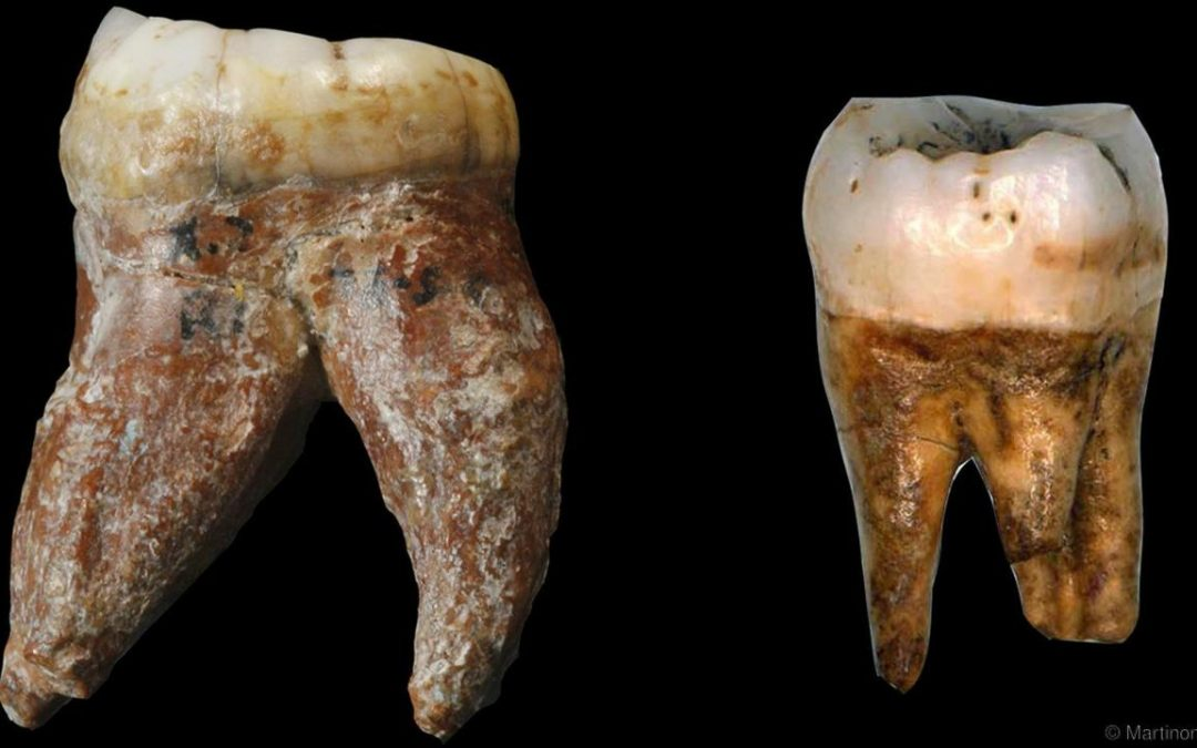 Previously lost fossilised human teeth produce new data