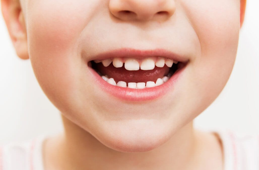 Children not getting dental check-ups early enough